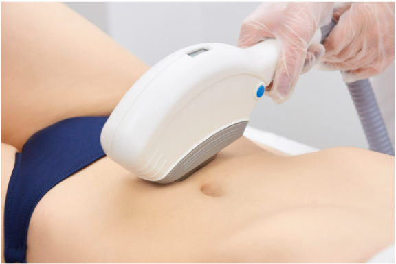 A definitive guide to preparing for an IPL treatment in Singapore